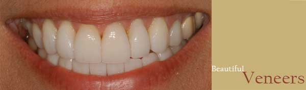 Savage Smiles Family & Cosmetic Dentistry Veneers